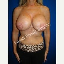 45-54 year old woman treated with Breast Implant Revision