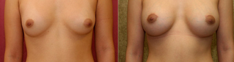 breast implants revision after 302665