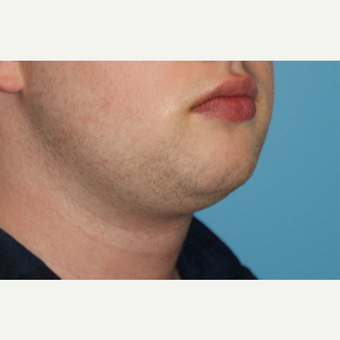 25-34 year old man treated with Chin Liposuction before 3638164