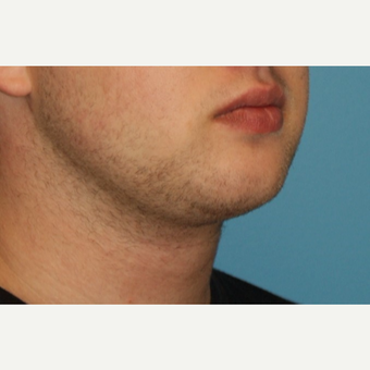 25-34 year old man treated with Chin Liposuction after 3638164