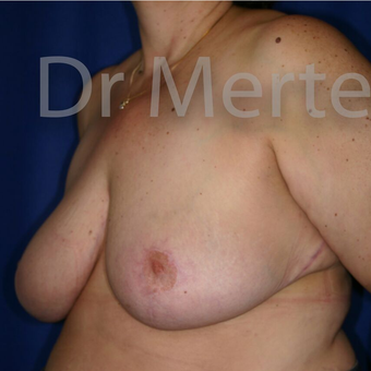 Breast Reduction after 3681269