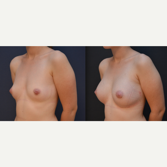 18-24 year old woman treated with Breast Augmentation before 3238830