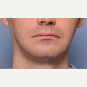 18-24 year old man treated with Chin Surgery before 2212498