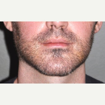18-24 year old man treated with Chin Surgery after 2212498