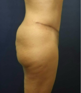 35-44 year old woman treated with Brazilian Butt Lift before 2171901