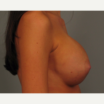 18-24 year old woman treated with Endo-Axillary Breast Augmentation after 3464984