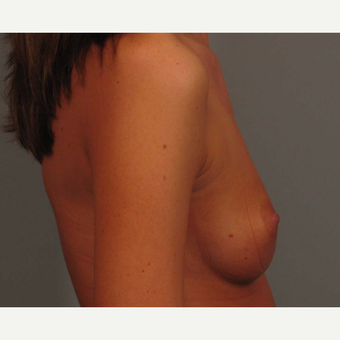 18-24 year old woman treated with Endo-Axillary Breast Augmentation before 3464984