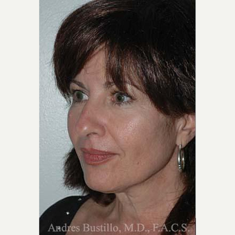 49 year old woman treated with Facelift before 3486253