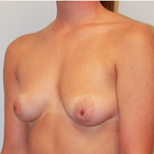 Breast Lift with Implants before 2073581