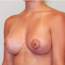 Breast Lift with Implants after 2073581