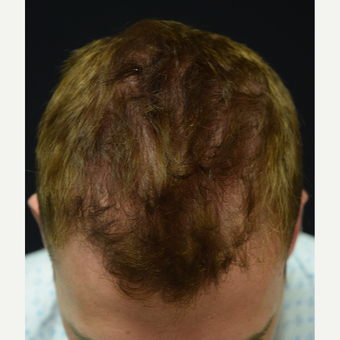 25-34 year old man treated with FUE Hair Transplant before 3338773