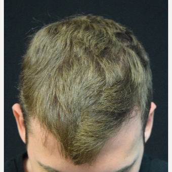 25-34 year old man treated with FUE Hair Transplant after 3338773