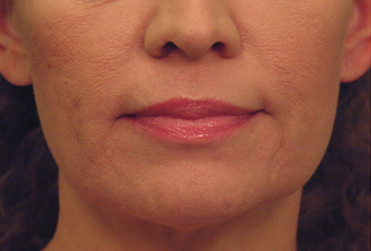 Laser Skin Tightening with acne scar improvement after 53749