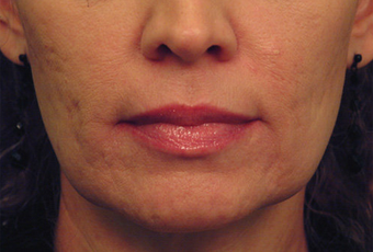 Laser Skin Tightening with acne scar improvement before 53749