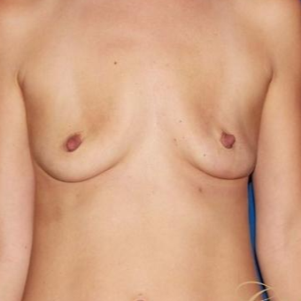 36 year old woman treated with a Breast Lift before 3640755