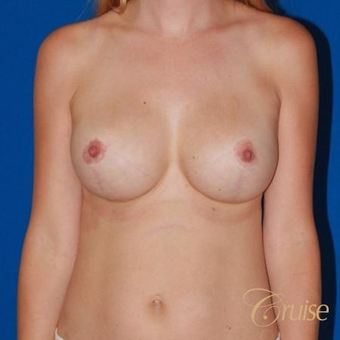 36 year old woman treated with a Breast Lift after 3640755