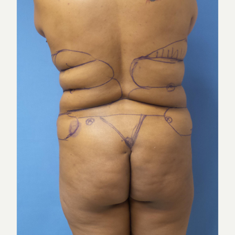 35-44 year old woman treated with Liposuction before 3168285