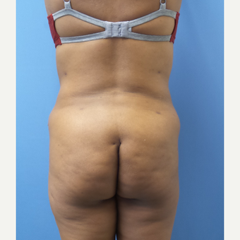35-44 year old woman treated with Liposuction after 3168285