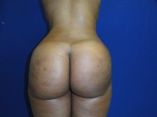37 year old Brazilian Butt Lift after 1069860