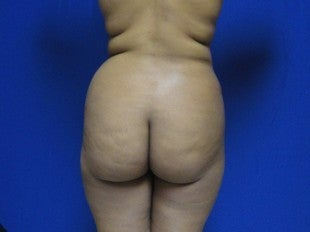 37 year old Brazilian Butt Lift before 1069860
