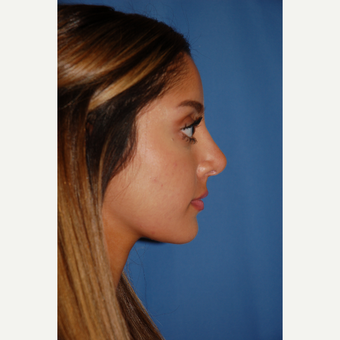 18-24 year old woman treated with Rhinoplasty after 3288885