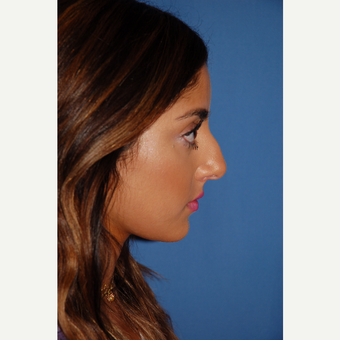 18-24 year old woman treated with Rhinoplasty before 3288885