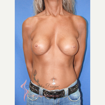 45-54 year old woman treated with Breast Augmentation after 3100444