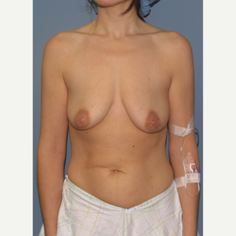 25-34 year old woman treated with Breast Lift with Implants before 3475116