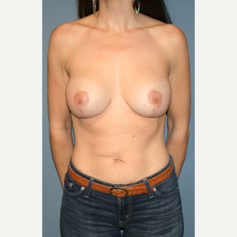 25-34 year old woman treated with Breast Lift with Implants after 3475116