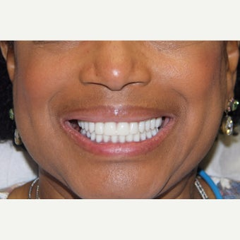 55-64 year old woman treated with All-on-4 Dental Implants after 1762331