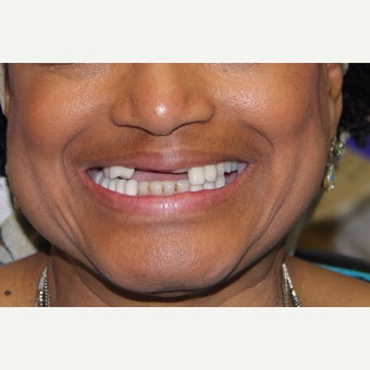 55-64 year old woman treated with All-on-4 Dental Implants before 1762331