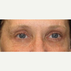 50 year old woman treated with Eyelid Surgery before 3026084