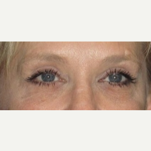 50 year old woman treated with Eyelid Surgery after 3026084