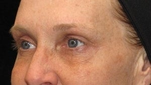 50 year old woman treated with Eyelid Surgery 3026084
