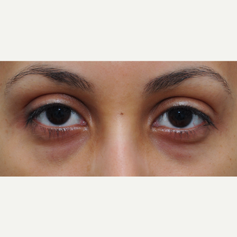 Restylane to decrease under eye darkness before 3565016