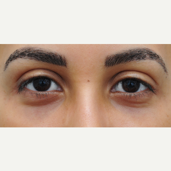 Restylane to decrease under eye darkness after 3565016