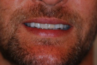 35-44 year old man treated with Porcelain Veneers before 3507189