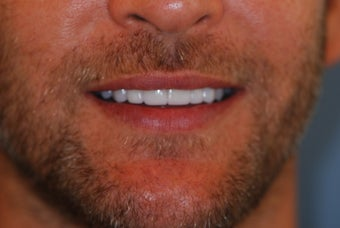 35-44 year old man treated with Porcelain Veneers after 3507189