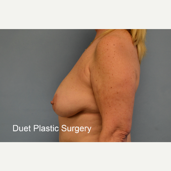 45-54 year old woman treated with Breast Lift before 3350281