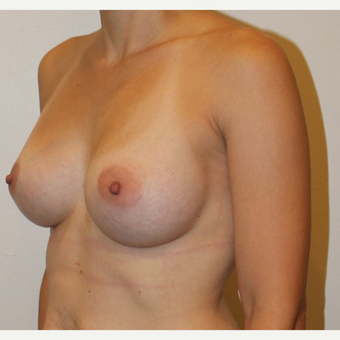 35-44 year old woman treated with Breast Augmentation after 3372566