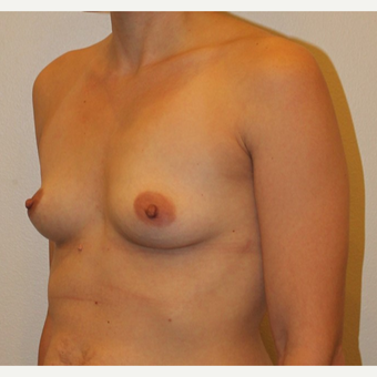 35-44 year old woman treated with Breast Augmentation before 3372566