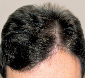 Male Hair Transplant: Before and After Photo