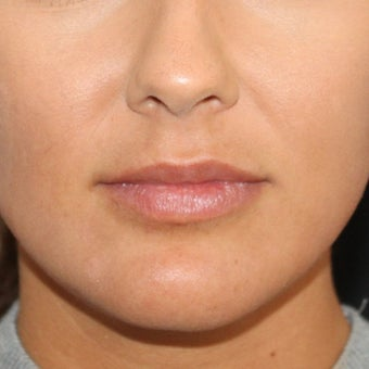 18-24 year old woman treated with Lip Implants