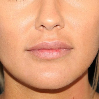 18-24 year old woman treated with Lip Implants after 2205914
