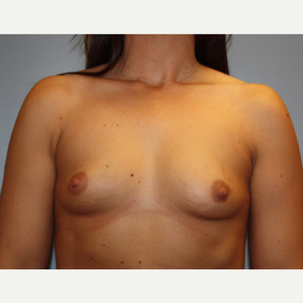 25-34 year old woman treated with Breast Augmentation before 3683051