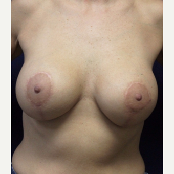 45-54 year old woman treated with Breast Lift with Implants after 3520174