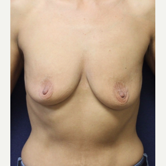 45-54 year old woman treated with Breast Lift with Implants before 3520174