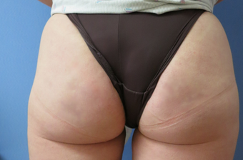 Revolutionary Permanent Cellulite Treatment  after 1268440