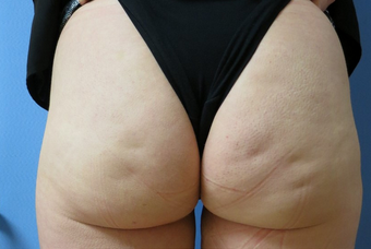 Revolutionary Permanent Cellulite Treatment  before 1268440