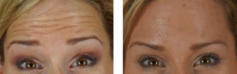 Botox to the Forehead/Glabella after 1312760
